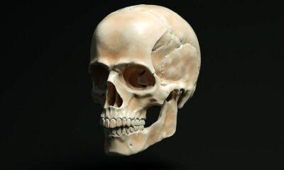 Cranio Medicina